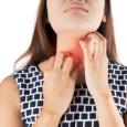 , Prurito alla gola: cause e rimedi più comuni