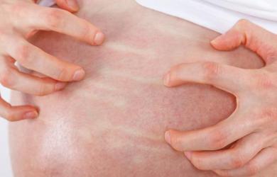colestasi gravidica